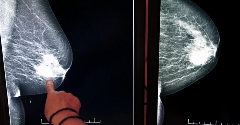 rakovina-prsnika-a-genericke-lieky