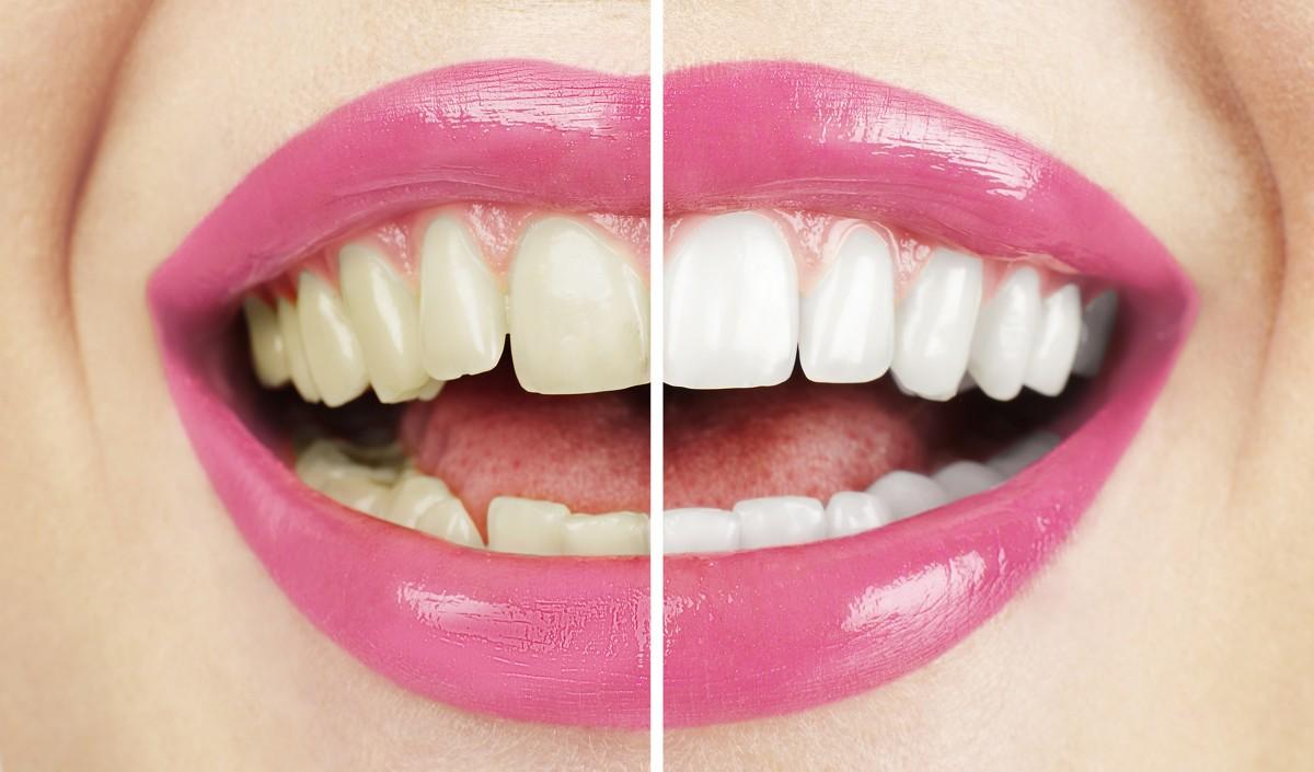 Jak odstranit zubní kámen