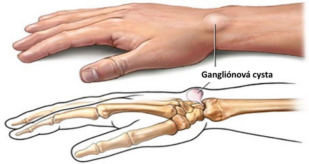 ganglionova cysta 1