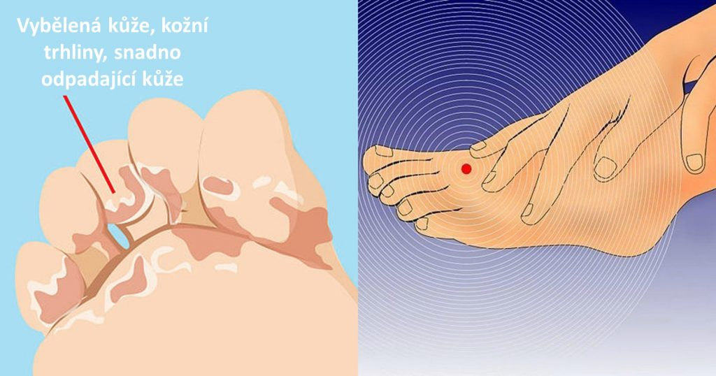 nohy diagnostika