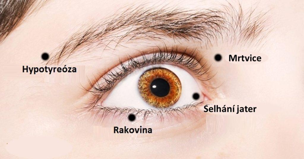ocni-diagnostika