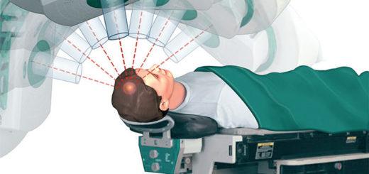 Vědci zjistili, že po radioterapii vznikají rakovinné buňky, které jsou mnohem zhoubnější než původní rakovina před zahájením léčby.