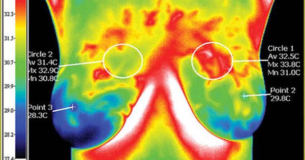 Víte, že termograf dokáže odhalit rakovinu prsu dříve než mamograf?